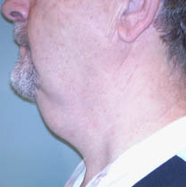 Avant lifting cervico-facial