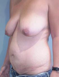 Galeries de beaux seins - sexxxfreefr