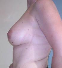 Après augmentation par implant mammaire