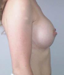 Après implants mammaires ronds